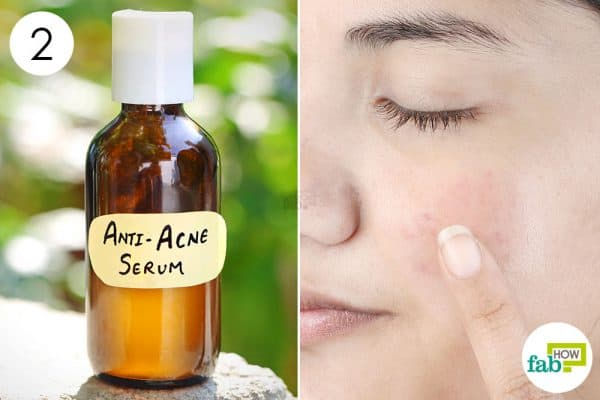 make your own DIY face serum for acne