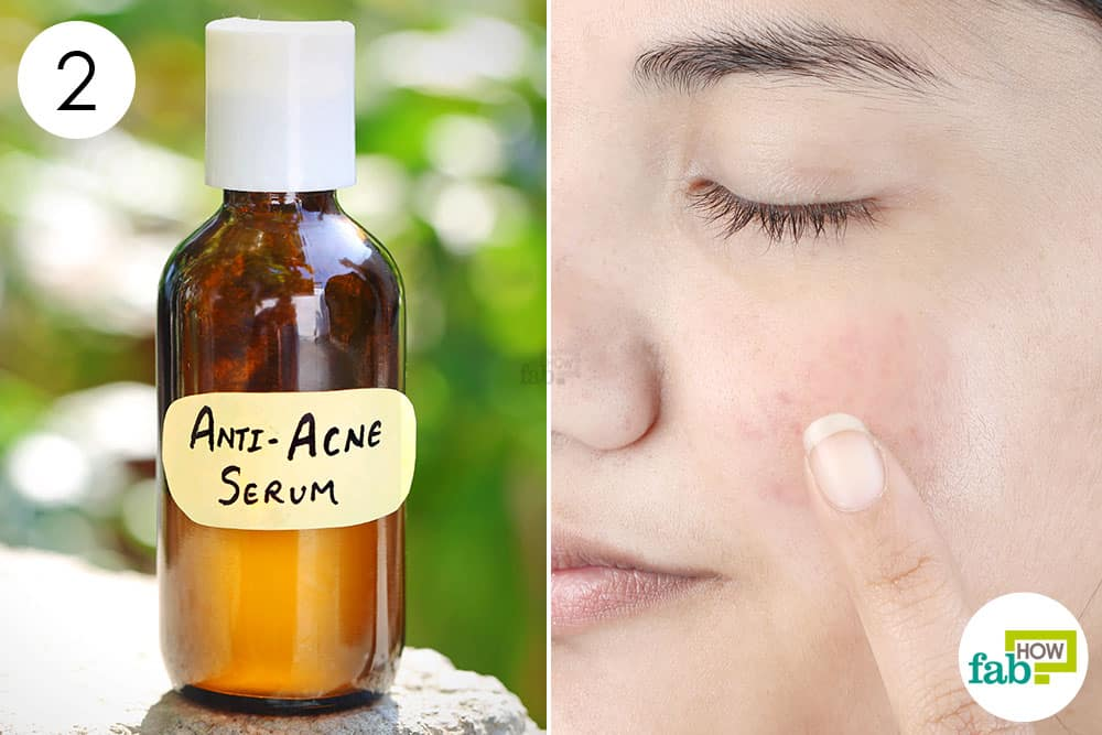 4 diy face serums for aging acne and more most popular recipes apply this diy anti acne face serum and dab a few extra drops on the acne affected areas solutioingenieria Gallery