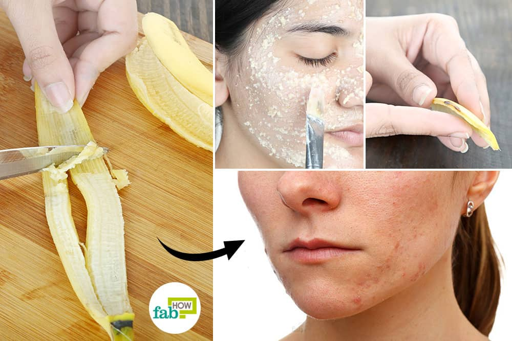 feat how to use banana peel for health and beauty