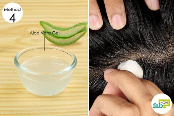 aloe vera home remedies for dry flaky scalp