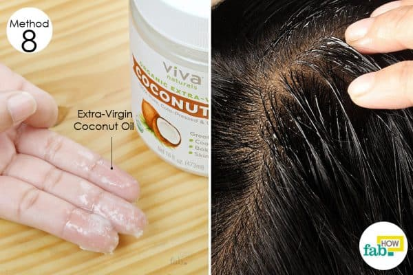 coconut oil home remedies dry flaky scalp