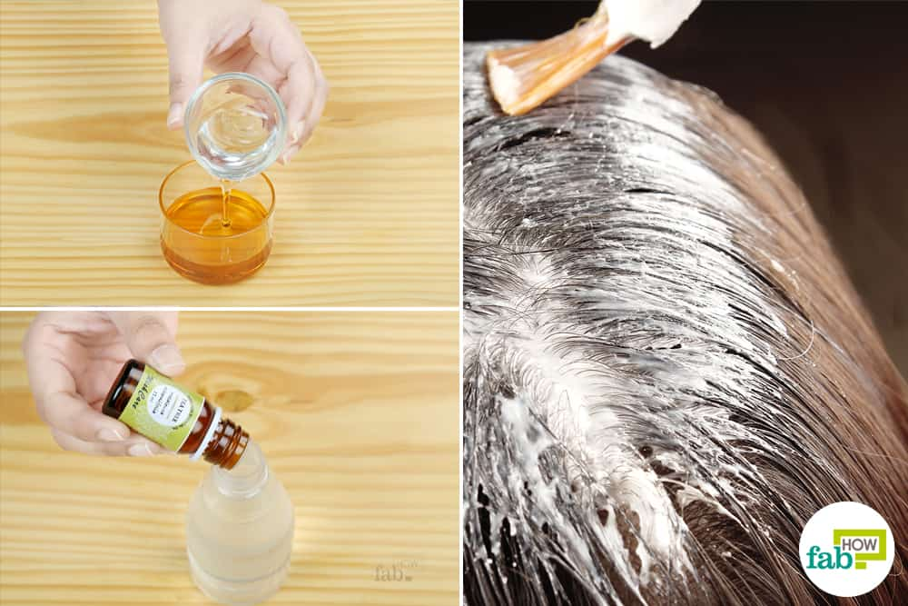 Flaky Scalp (Dandruff): Check Your Symptoms and Signs