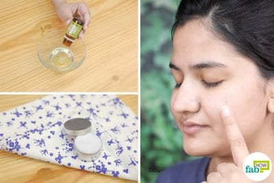 make diy homemade anti acne cream gel