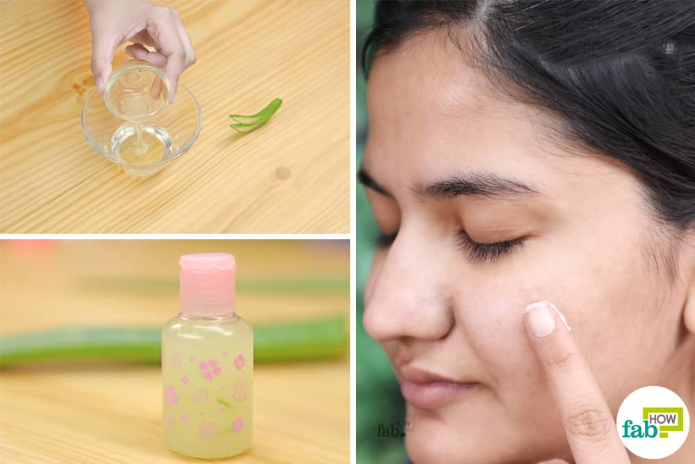 Homemade Anti Acne Cream And Gel Recipes That Really Work Fab How
