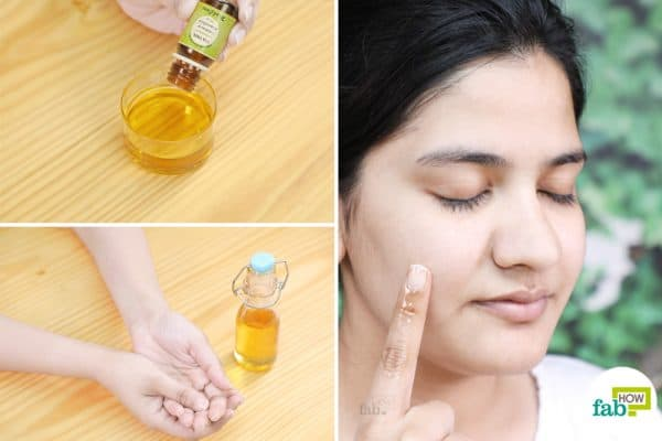 olive oil remedy for skin disorder