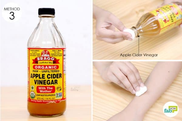 dab apple cider vinegar on sting
