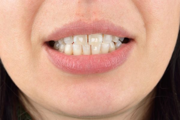 learn how to get rid of white spots on teeth naturally