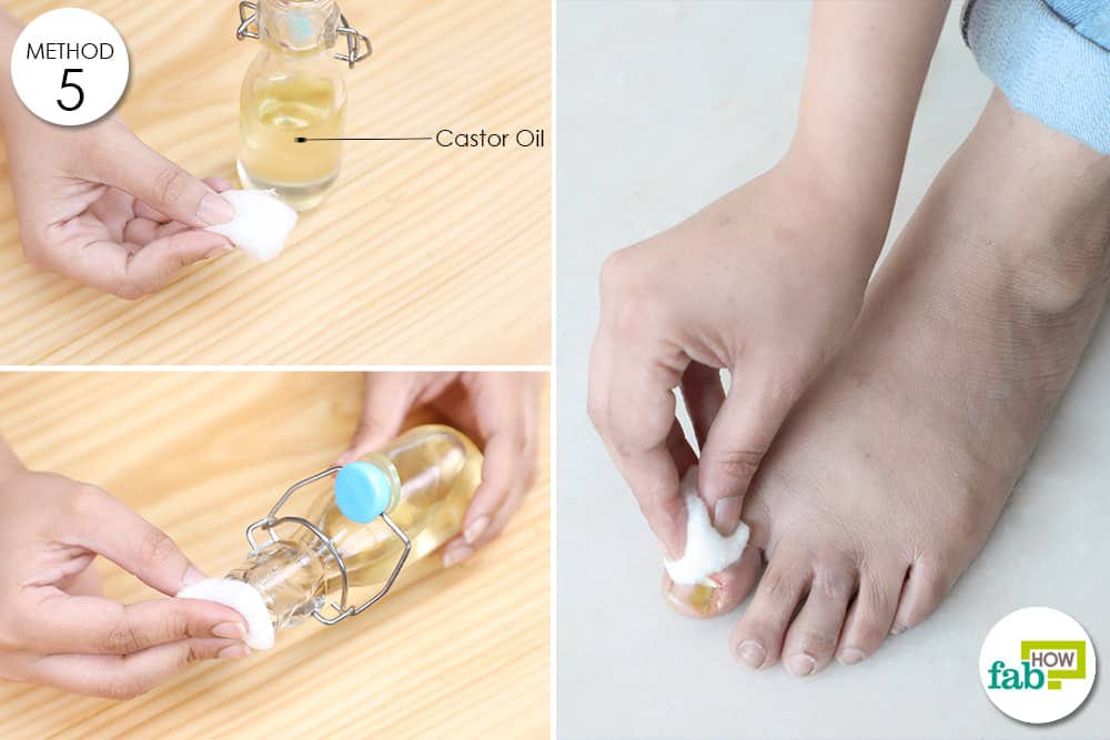 castor oil for ingrown toenail
