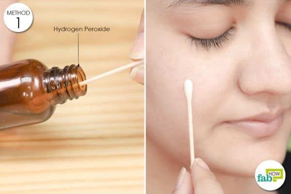 hydrogen peroxide fro acne