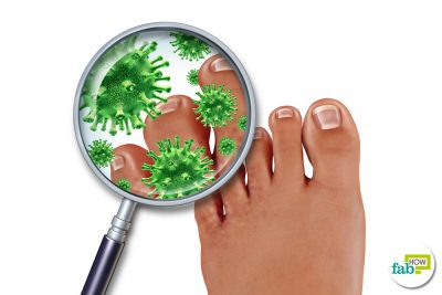 get rid of fungal infection