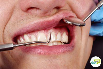 how to heal swollen gums