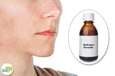 Hydrogen Peroxide for Acne