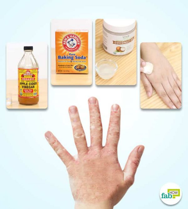 Learn 10 Best ways to get rid of fungal infection naturally