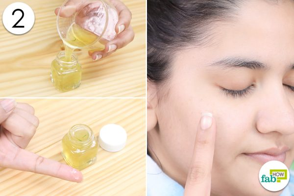 apply anti acne gel to clear acne