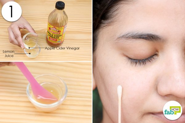 apply acv mix to skin to clear acne