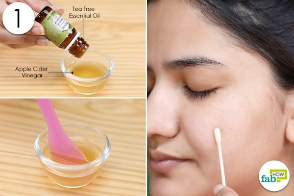 apply tea tree oil acv for acne