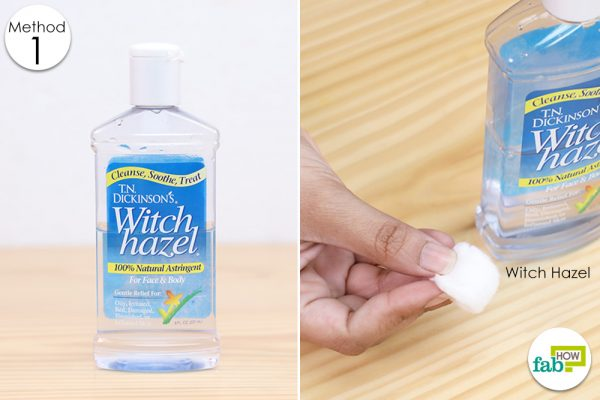 witch hazel for anal itch